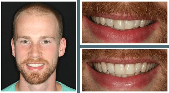 dental-distinction-patient